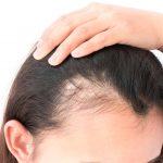 女性発毛症例